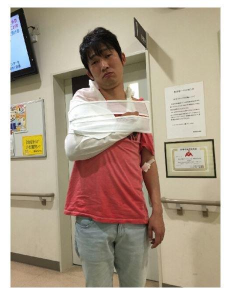 ノンスタイル石田がブログで再び骨折した事を報告「また折れてしまいました」
