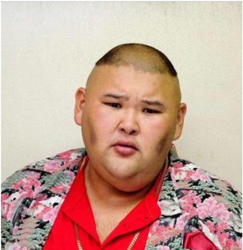 安田大サーカス・ヒロ脳出血で緊急搬送・入院!ダイエットリバウンド原因?現在の状態・病状