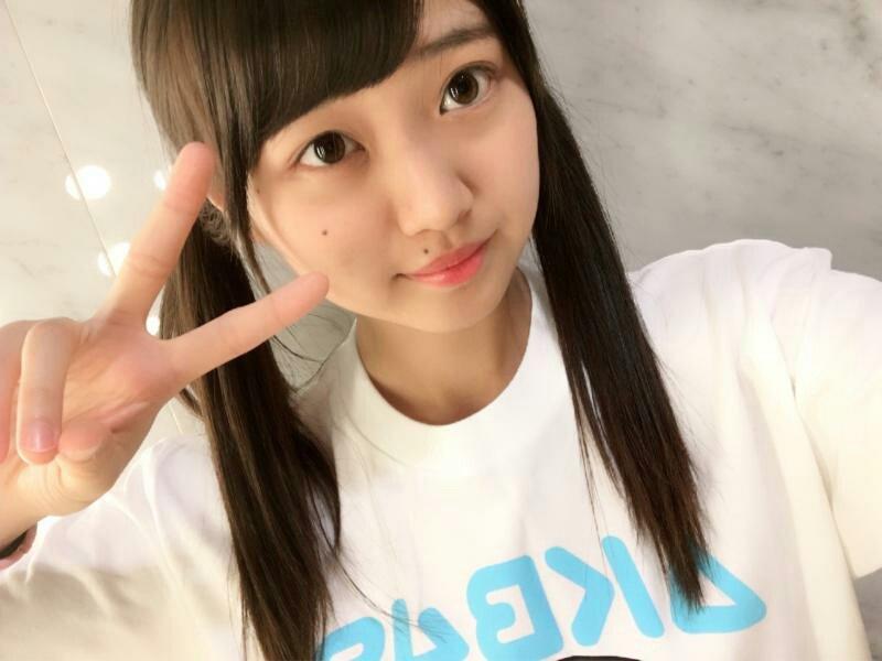 AKB48稲垣香織がコンサート中落下し頭部骨折!怪我と今後は?